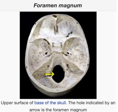 image credit - Wikipedia