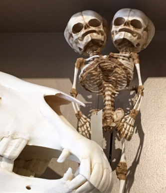 Replica of conjoined twins - original at the Mutter Museum.