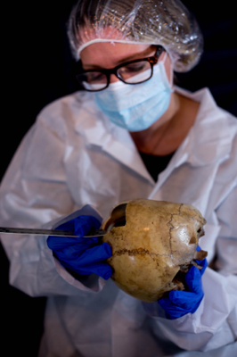 Kerry McClure measuring skull thickness
