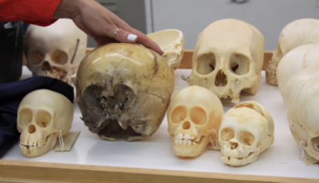 Comparison of the Starchild Skull to human and adult skulls, photo credit: Chase Kloetzke
