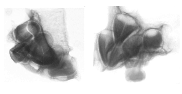 Images and x-rays of Starchild maxilla and teeth